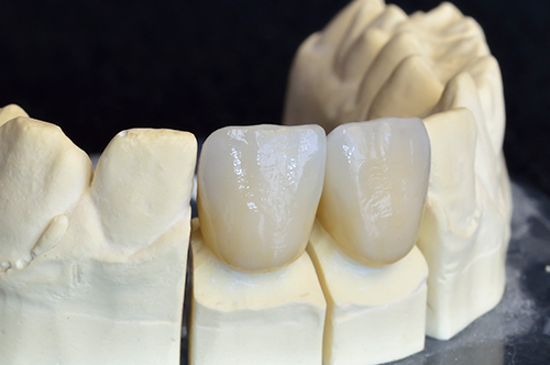 Cromwell Ceramic Crowns