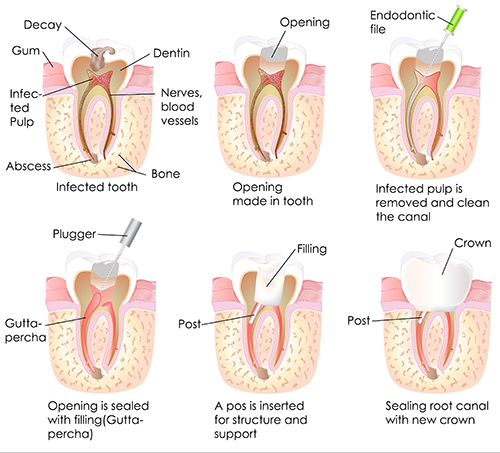 Cromwell Root Canal